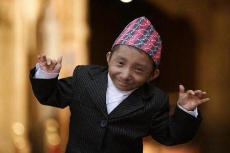 Dünyanın ən kiçik adamı vəfat edib