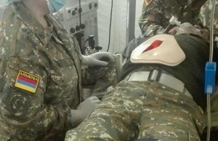 Qarabağda 2 erməni hərbi qulluqçunun meyiti tapılıb