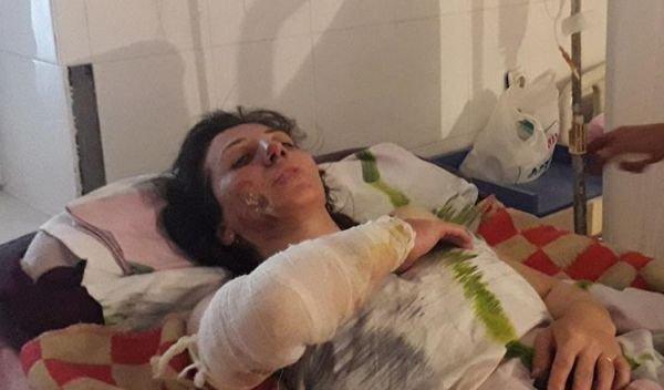 Gəncədə həyat yoldaşını yandıran şəxs saxlanıldı - TƏFƏRRÜAT