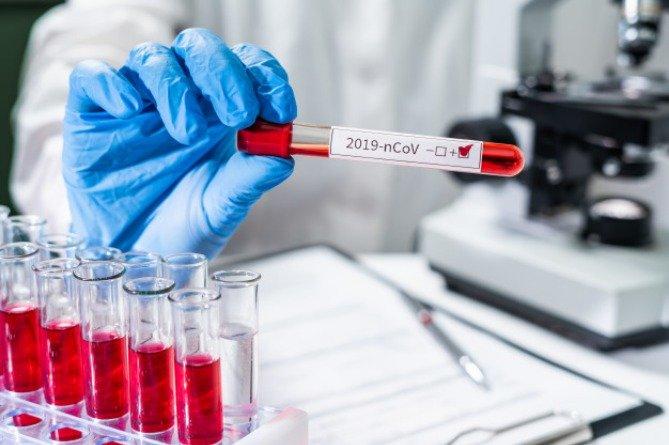 Ermənistanda koronavirus rekord vurdu – 697 yoluxma, 15 ölüm