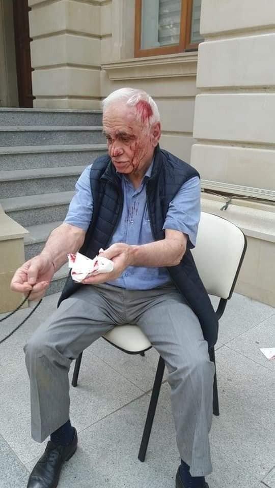 Rəhim Qazıyevi küçədə döydülər - FOTO