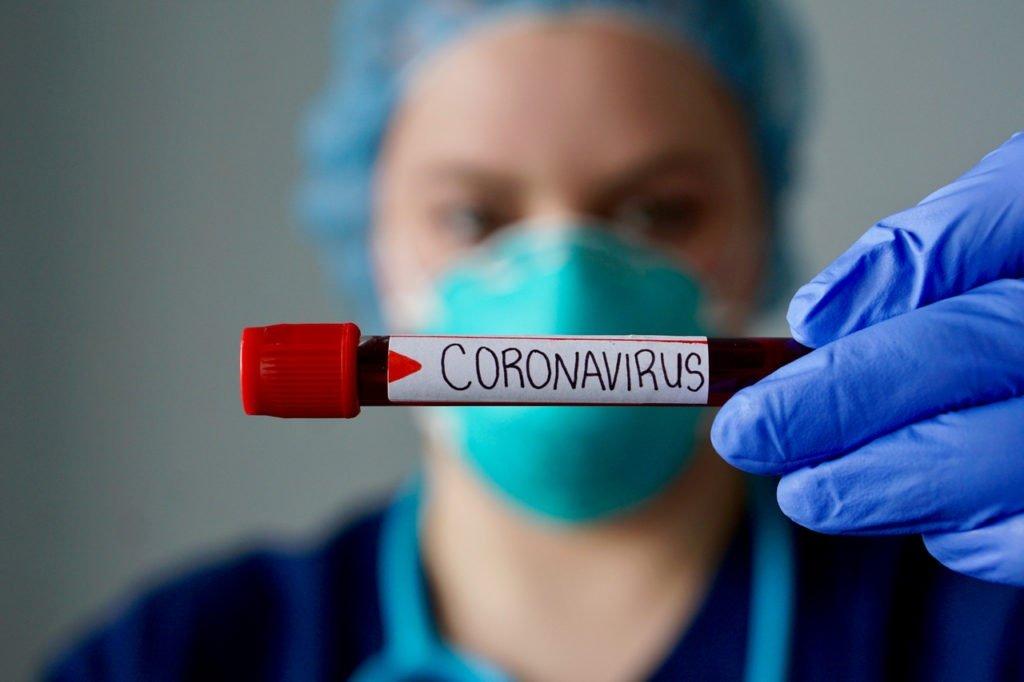 Azərbaycanda daha 588 nəfər koronavirusa yoluxdu, 7 nəfər öldü