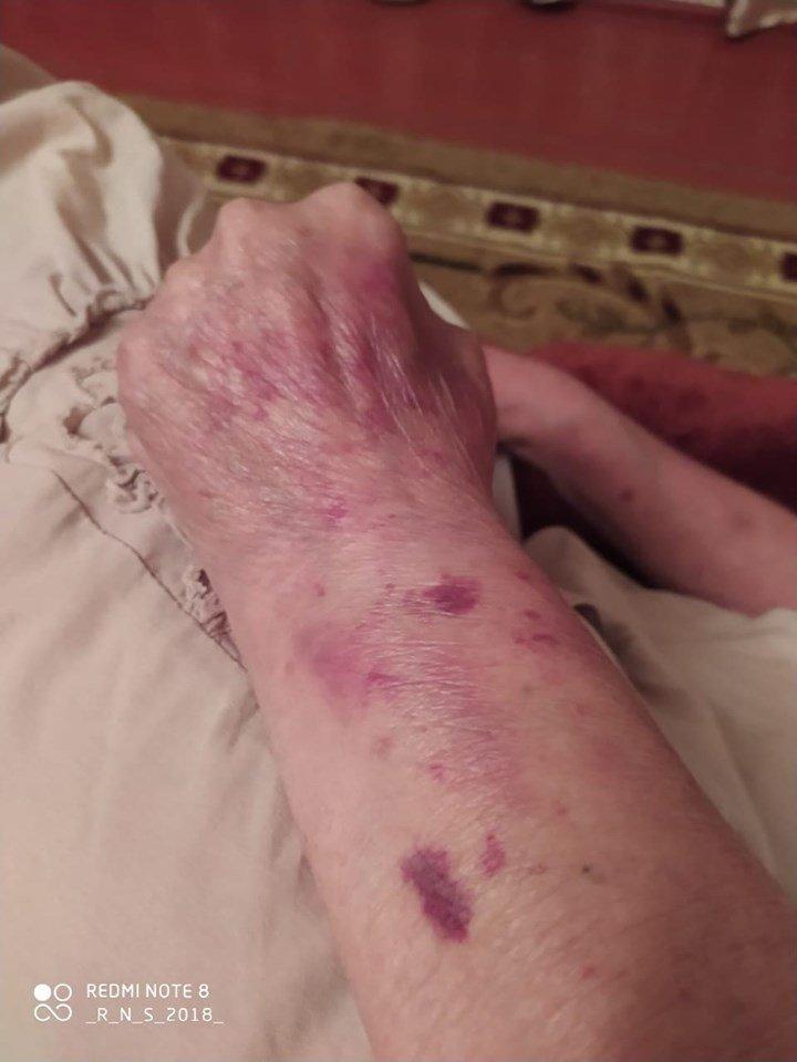 73 yaşlı nənə amansızcasına döyülüb - FOTOLAR