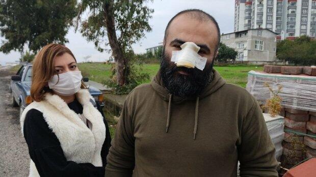 Pitbul azərbaycanlı iş adamının burnunu qopardı - Foto